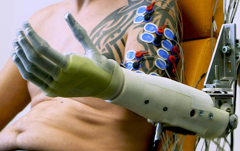 Robotic prosthetic connected to an arm via wires.