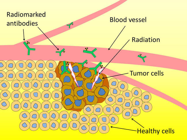 Astatine An Ally Against Cancer Cnrs News
