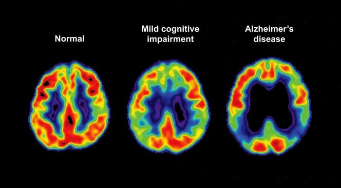 Alzheimer diagnostic